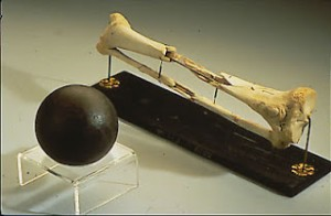 Daniel Sickles severed leg, and an example of the cannonball that took it off.